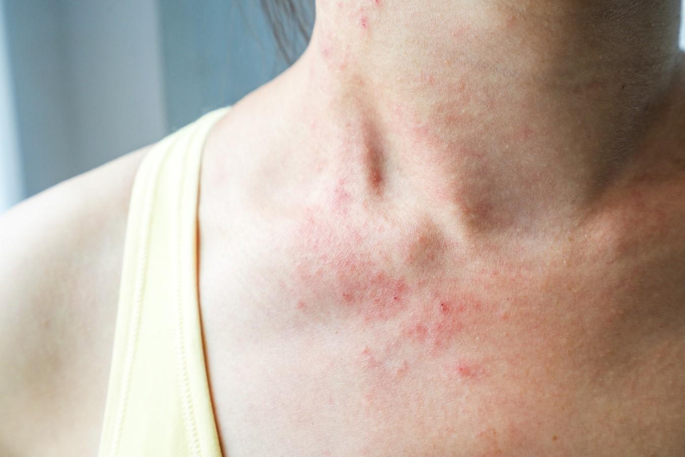 women rash neck